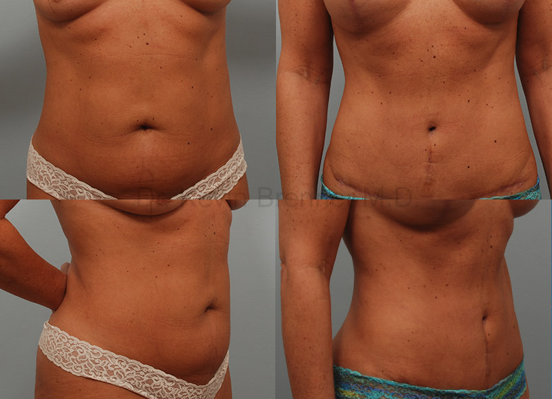 Liposuction Gallery - Patient 1482412 - Image 1