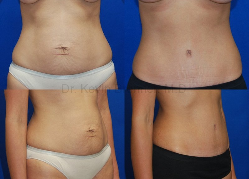 Tummy Tuck Gallery - Patient 1482409 - Image 1