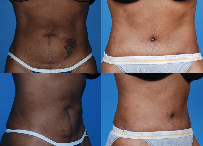 Tummy Tuck Gallery - Patient 1482411 - Image 1