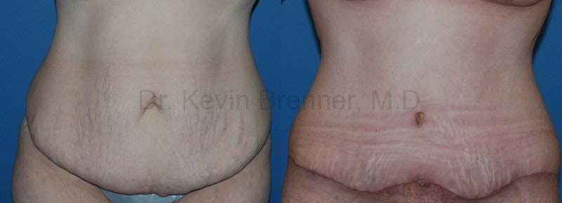Body Contouring Gallery - Patient 1482413 - Image 1