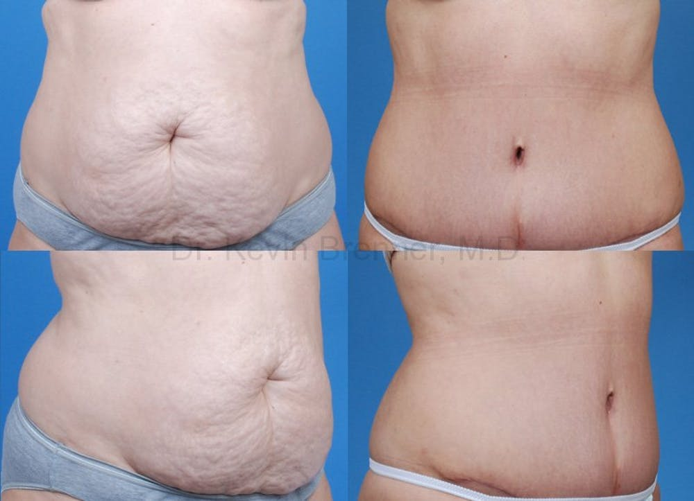 Before and after of tummy tuck in Beverly Hills 1