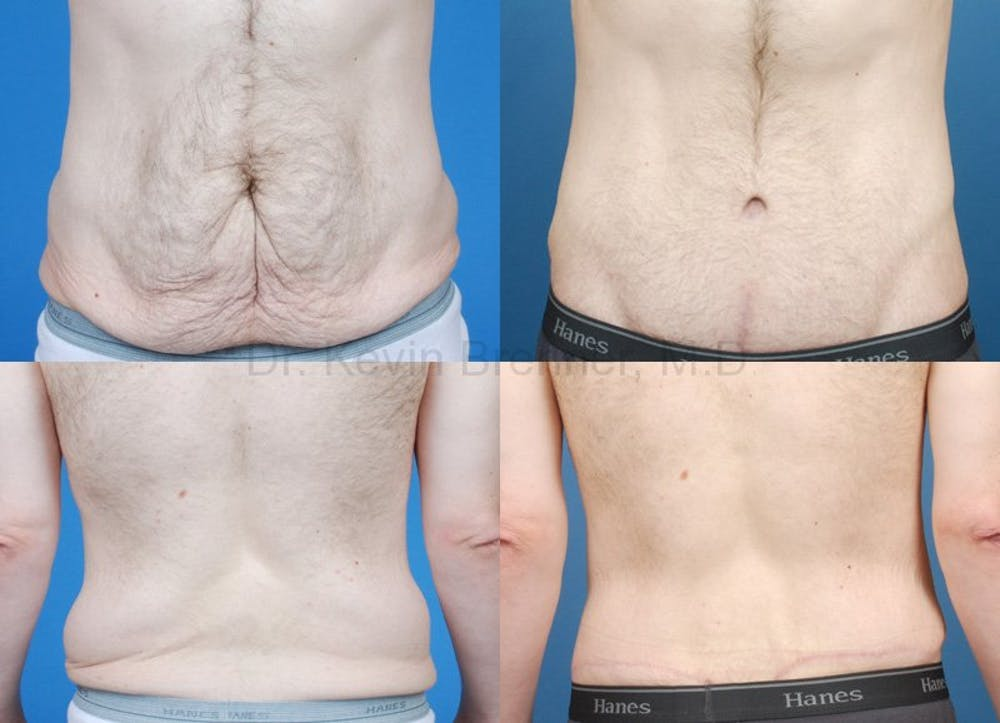 Body Contouring Gallery - Patient 1482415 - Image 1