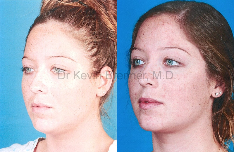 Liposuction Gallery - Patient 1482417 - Image 1
