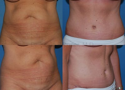 Tummy Tuck Gallery - Patient 1482416 - Image 1