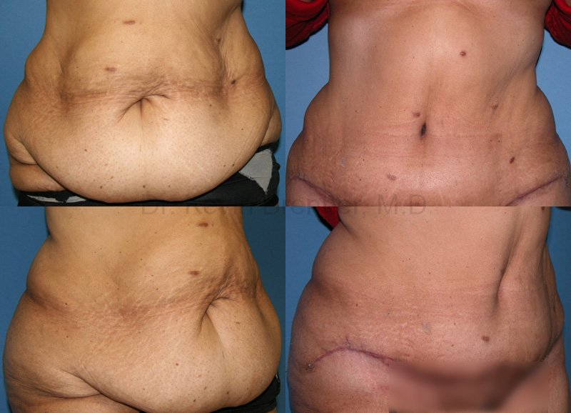 Body Contouring Gallery - Patient 1482418 - Image 1