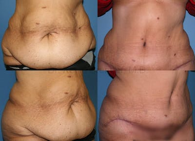 Body Contouring Gallery - Patient 1482418 - Image 4