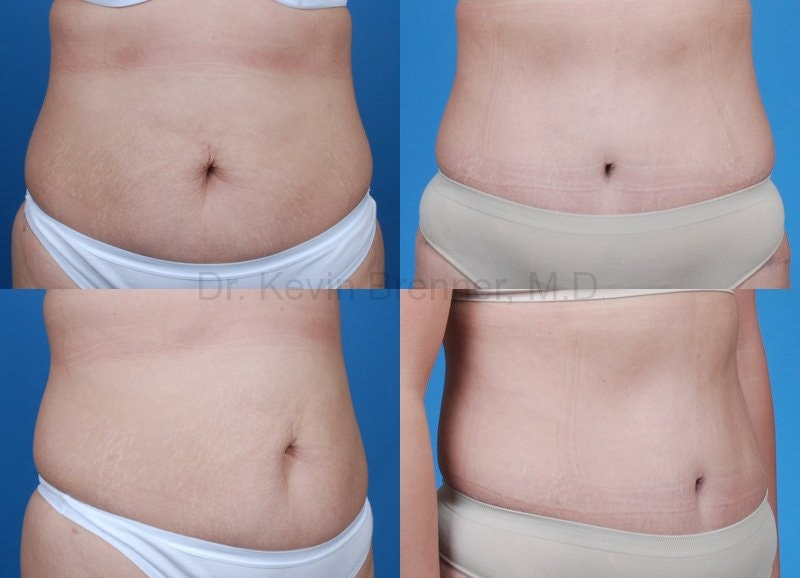 Tummy Tuck Gallery - Patient 1482421 - Image 1
