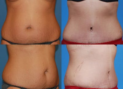 Tummy Tuck Gallery - Patient 1482423 - Image 1
