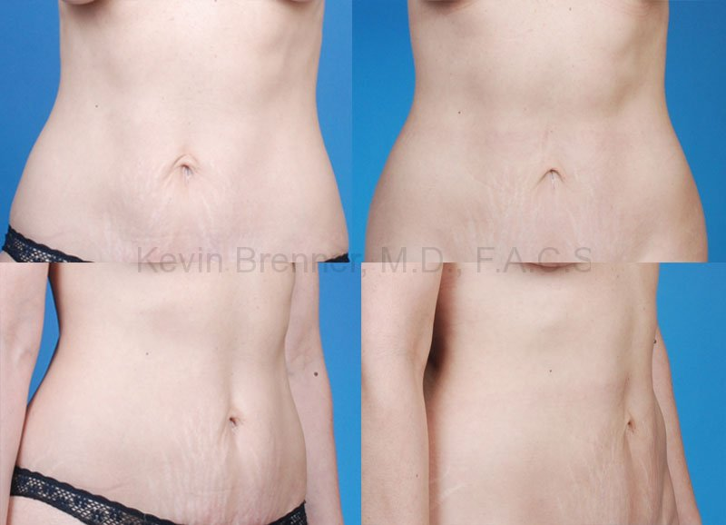Tummy Tuck Gallery - Patient 1482425 - Image 1