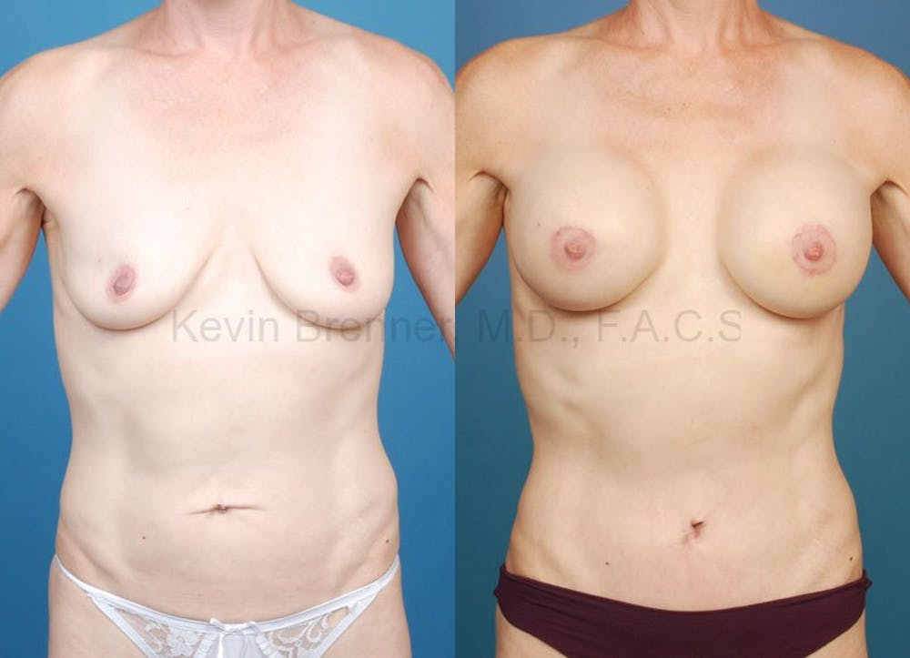 beverly hills mommy makeover before and after 3