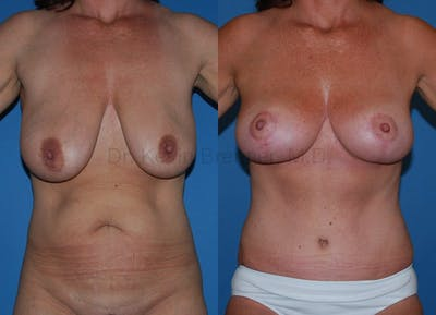 Mommy Makeover Gallery - Patient 1482428 - Image 1