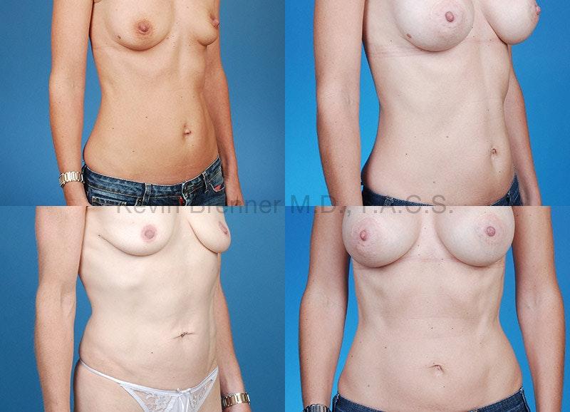 Umbilical Hernia Repair Gallery - Patient 1482432 - Image 1