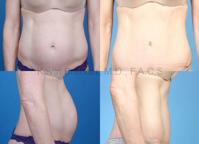 Tummy Tuck Gallery - Patient 1482431 - Image 1