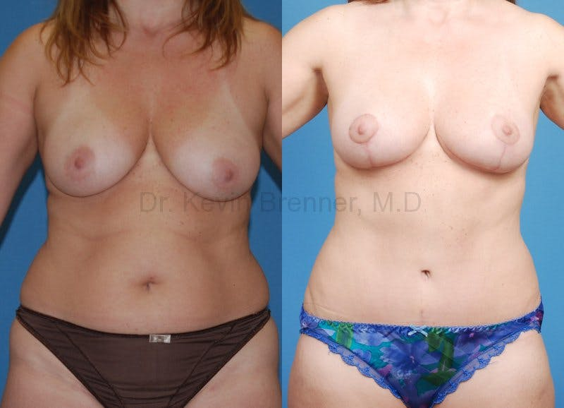beverly hills mommy makeover before and after 1