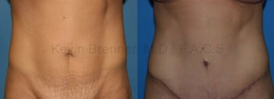 Tummy Tuck Gallery - Patient 1482435 - Image 1