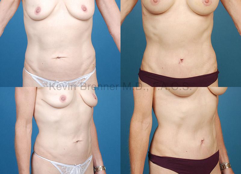 Umbilical Hernia Repair Gallery - Patient 1482436 - Image 1