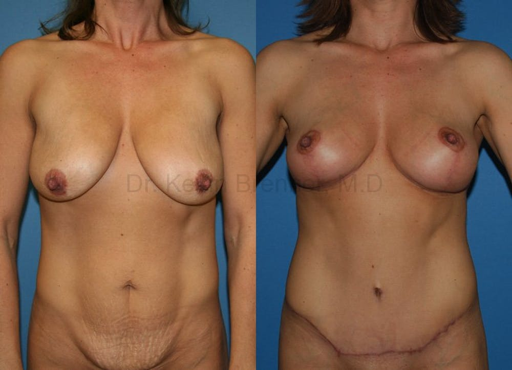 beverly hills mommy makeover before and after 4