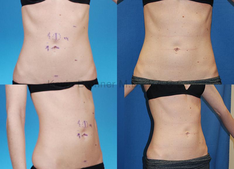 Umbilical Hernia Repair Gallery - Patient 1482443 - Image 1