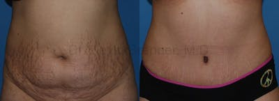 Tummy Tuck Gallery - Patient 1482444 - Image 17
