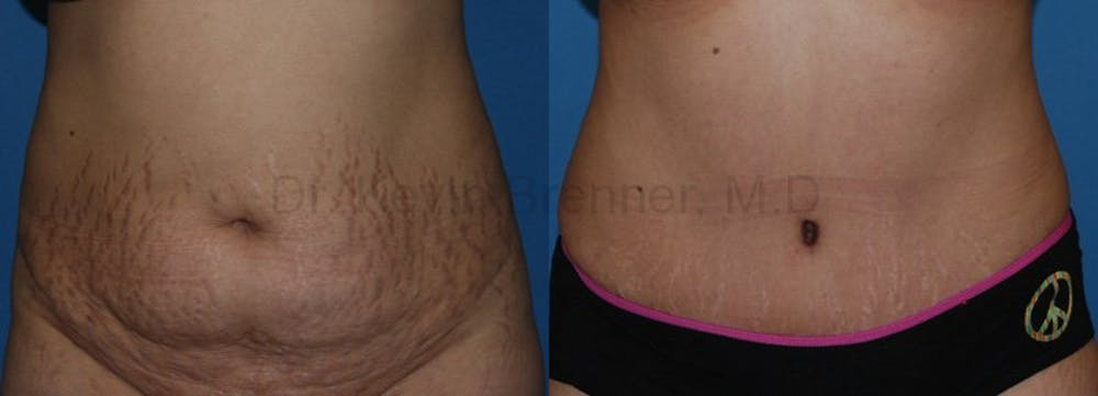 Tummy Tuck Gallery - Patient 1482444 - Image 1