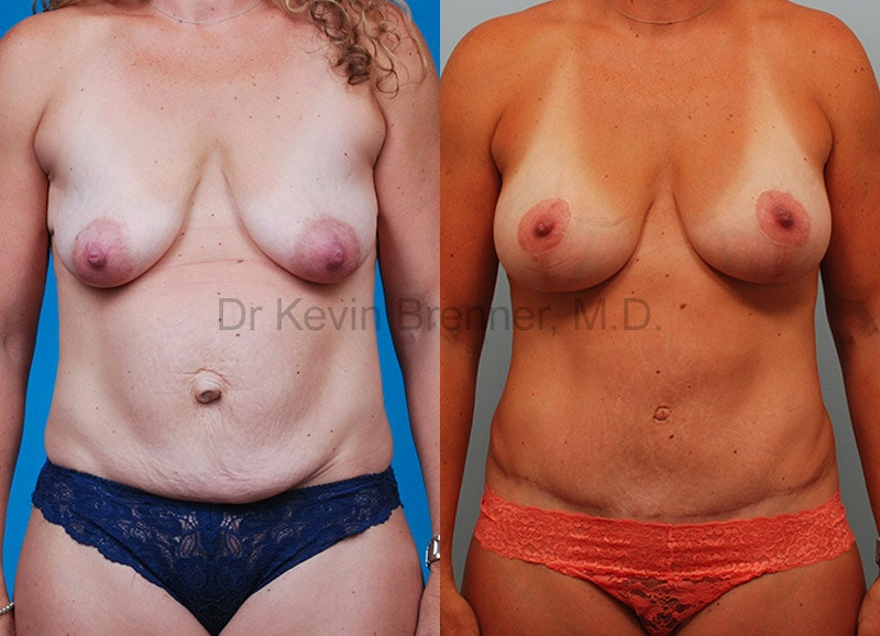 beverly hills mommy makeover before and after 5