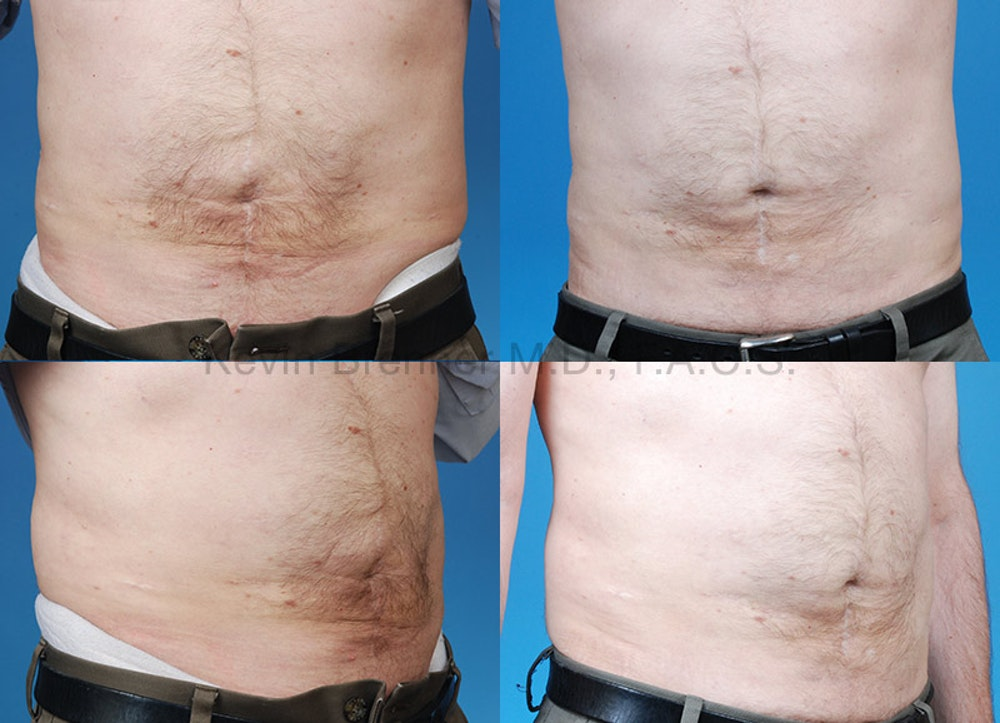 Umbilical Hernia Repair Gallery - Patient 1482447 - Image 1