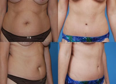 Before and after of tummy tuck in Beverly Hills 4