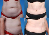 Tummy Tuck Gallery - Patient 1482448 - Image 1