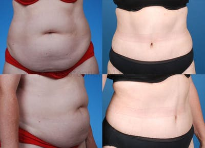 Tummy Tuck Gallery - Patient 1482448 - Image 19