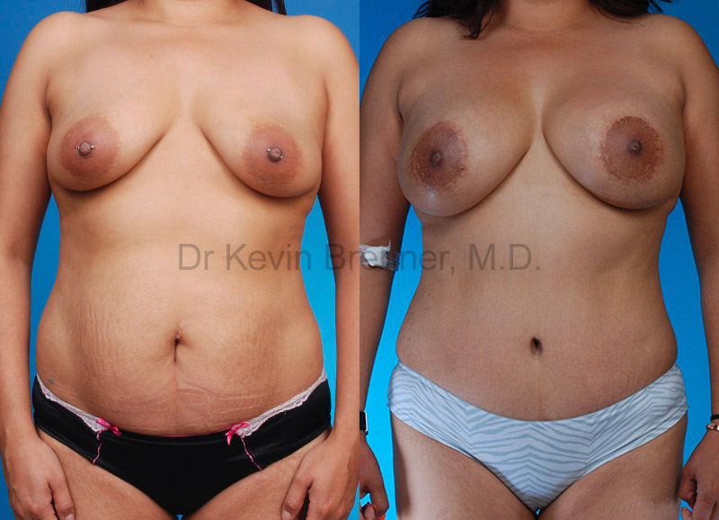 Mommy Makeover Gallery - Patient 1482449 - Image 1