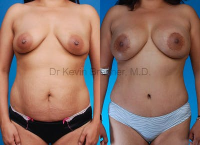 Mommy Makeover Gallery - Patient 1482449 - Image 11