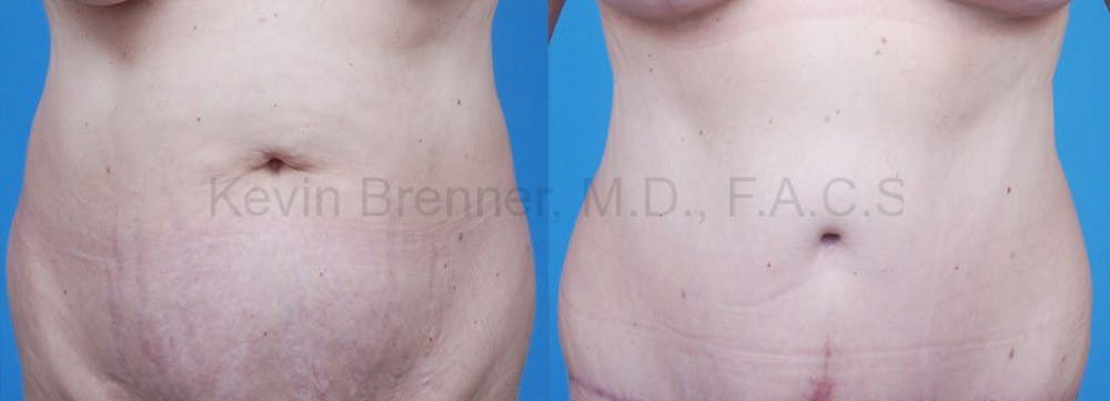 Tummy Tuck Gallery - Patient 1482452 - Image 1
