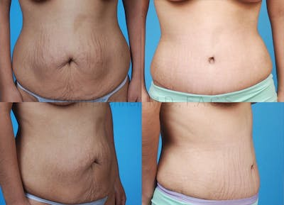 Before and after of tummy tuck in Beverly Hills 5