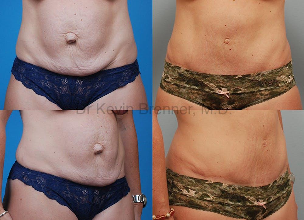 Umbilical Hernia Repair Gallery - Patient 1482455 - Image 1