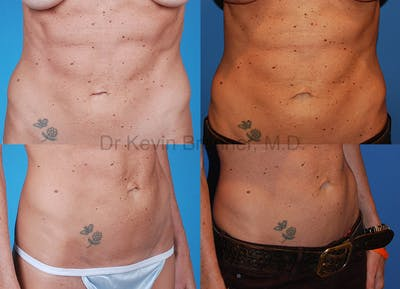 Umbilical Hernia Repair Gallery - Patient 1482458 - Image 1