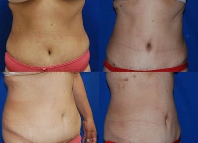 Tummy Tuck Gallery - Patient 1482459 - Image 24