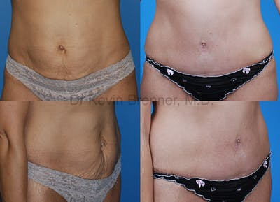 Umbilical Hernia Repair Gallery - Patient 1482460 - Image 10