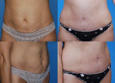 Umbilical Hernia Repair Gallery - Patient 1482460 - Image 1
