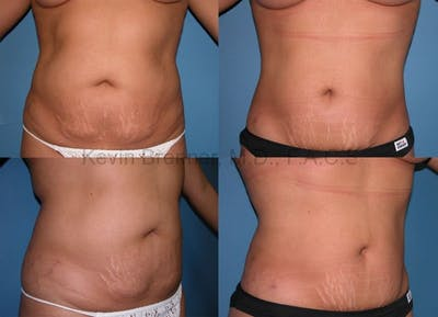 Tummy Tuck Gallery - Patient 1482461 - Image 25