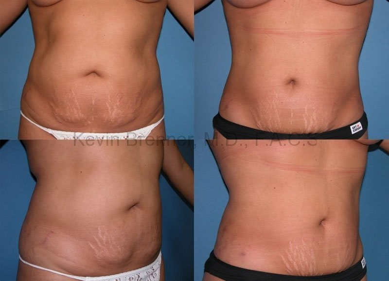 Tummy Tuck Gallery - Patient 1482461 - Image 1