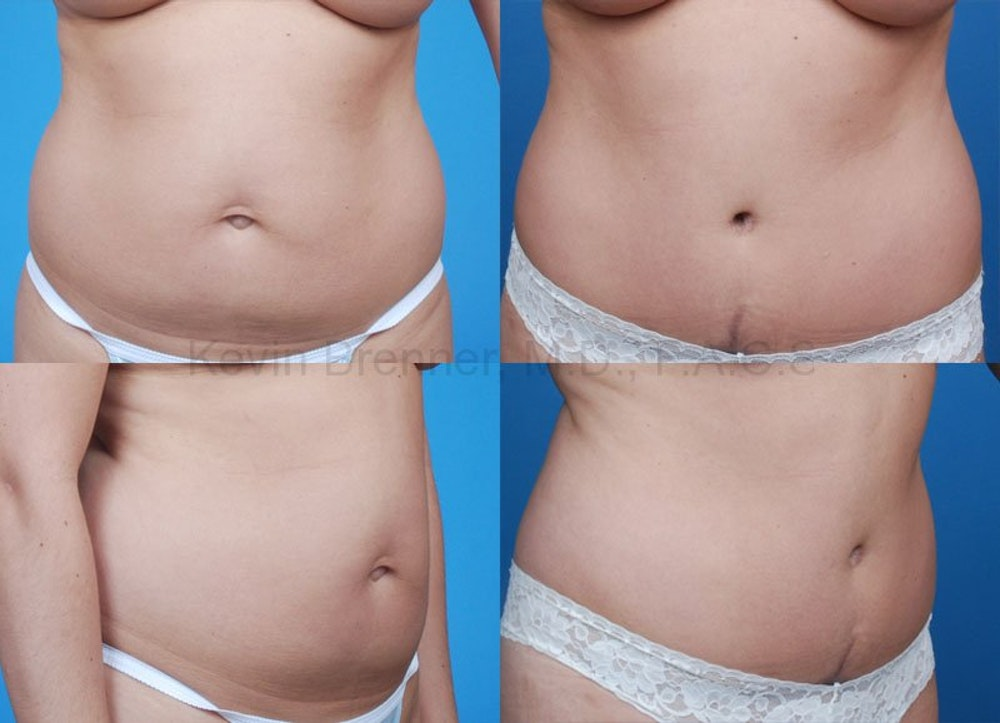Tummy Tuck Gallery - Patient 1482463 - Image 1