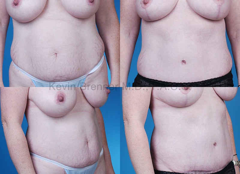 Tummy Tuck Gallery - Patient 1482464 - Image 1