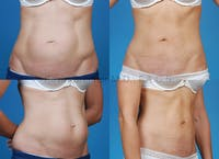 Tummy Tuck Gallery - Patient 1482465 - Image 1