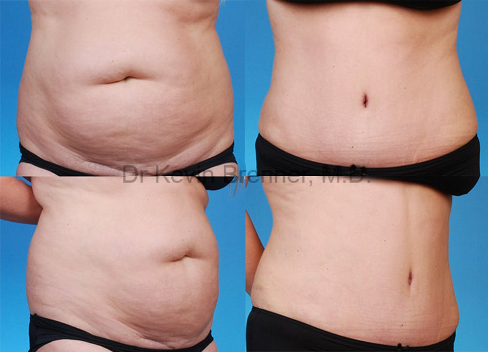 Tummy Tuck Gallery - Patient 1482467 - Image 1