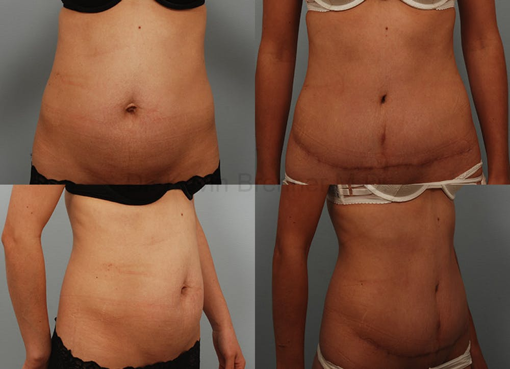 Tummy Tuck Gallery - Patient 1482469 - Image 1