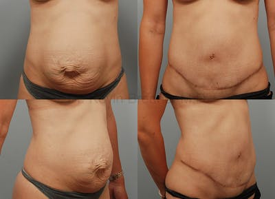 Tummy Tuck Gallery - Patient 1482470 - Image 31