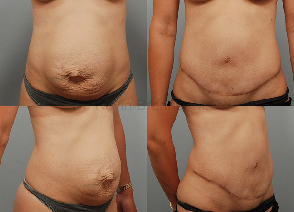 Tummy Tuck Gallery - Patient 1482470 - Image 1