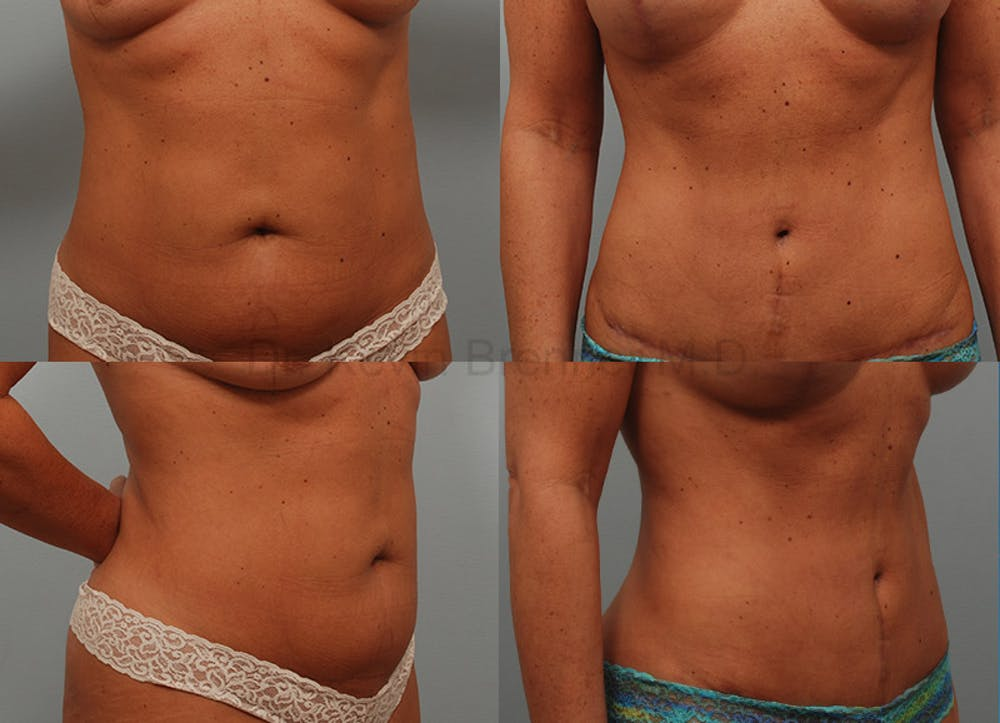 Tummy Tuck Gallery - Patient 1482471 - Image 1