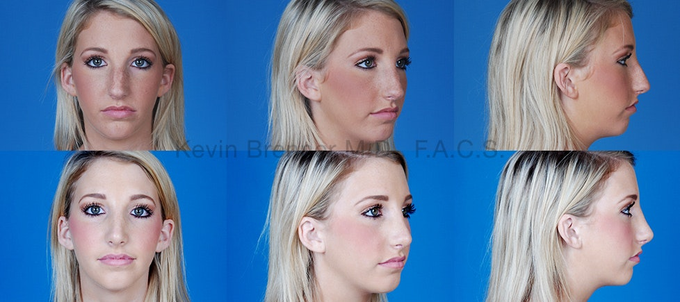 Before and after of beverly hills nose job patient 4