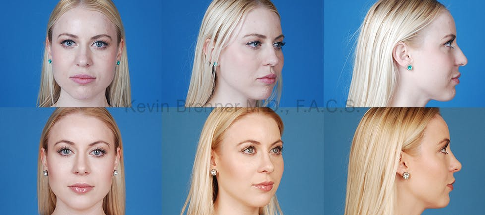 Before and after of beverly hills rhinoplasty patient 5